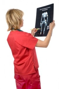 Actionable steps to avoid weak bones.