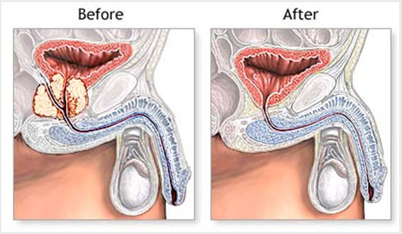 Robotic Prostatectomy Surgery - Before and After
