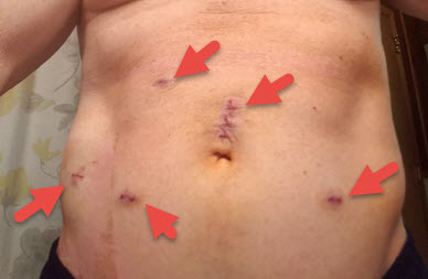 Robotic Prostatectomy Incisions1