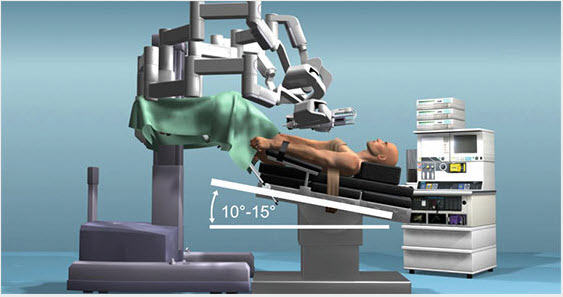 Robotic Prostatectomy - On Operating Table